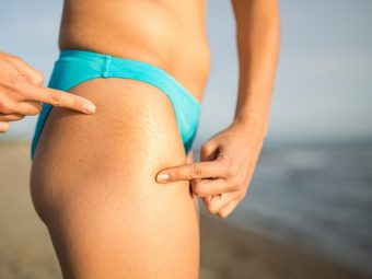 This-Is-All-You-Need-To-Get-Rid-Of-Stretch-Marks.-Yes,-It's-True!1