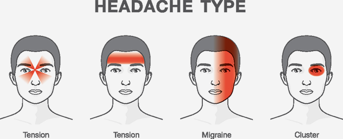 87 effective home remedies for treating headache