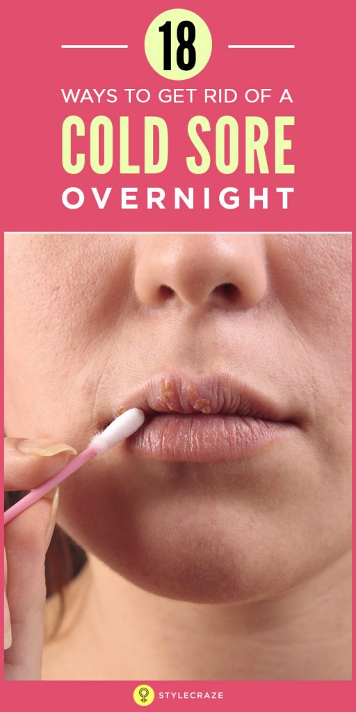 18-Ways-To-Get-Rid-Of-A-Cold-Sore-Overnight