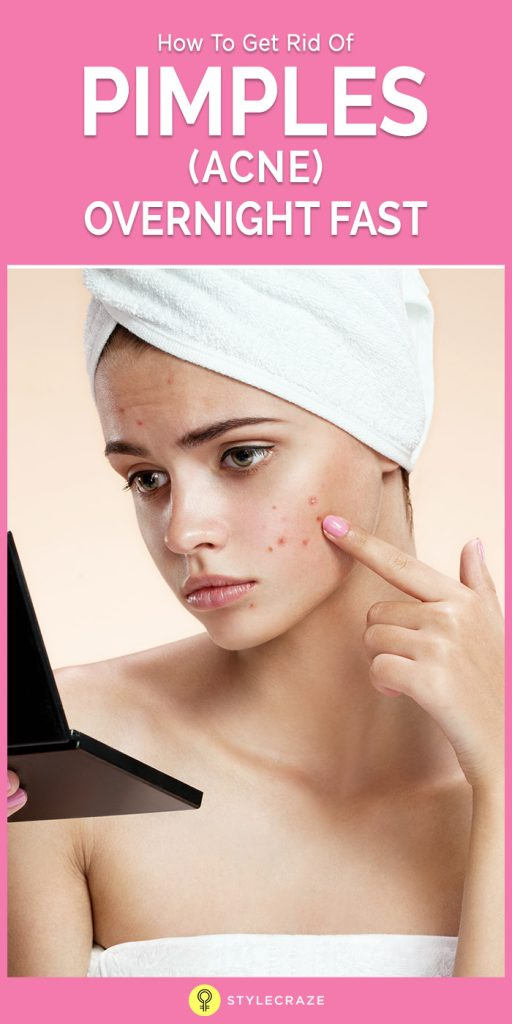 How To Get Rid Of Pimples In Hours