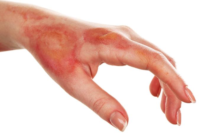 12. It Also Helps In Soothing A Stinging Burn.