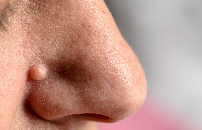 It-Helps-In-Removing-Warts