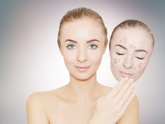 No-More-Dark-Spots,-Stains,-And-Hyperpigmentation
