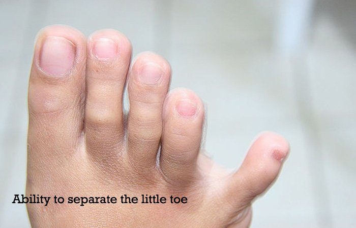 Ability-to-separate-the-little-toe
