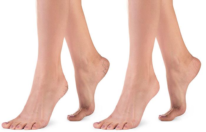 Cracked-Heels