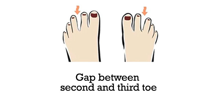Gap-between-second-and-third-toe