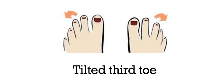 Tilted-third-toe