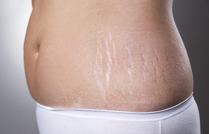 Bio-Oil For Pregnancy Stretch Marks