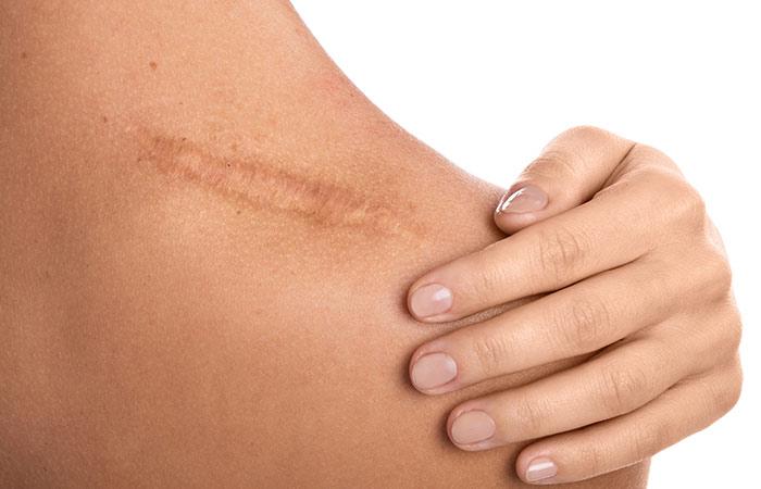 Bio-Oil For Scars