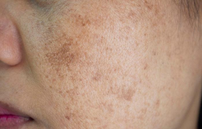 Bio-Oil For Uneven Skin Tone