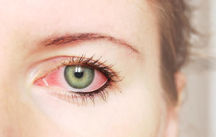 1.Red Eyes