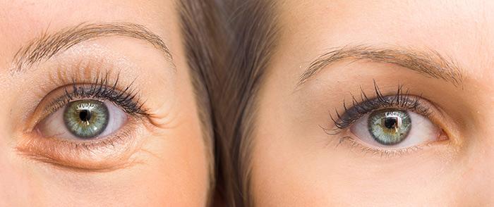12. Swollen Eyelids
