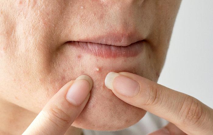 6. Chin (Hormonal Imbalance)