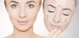No More Dark Spots, Stains, And Hyperpigmentation: This Mask Removes Them All