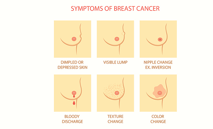 signs of breast cancer that have nothing to do with a lump