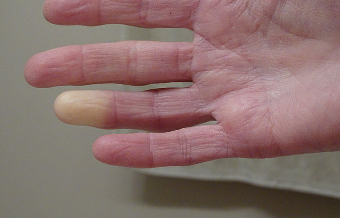 1. Raynaud's Syndrome