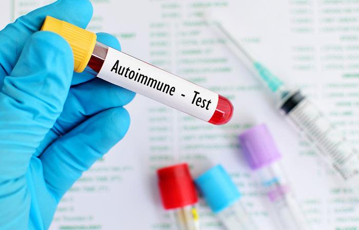 2. Autoimmune Diseases