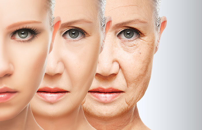 3. Aging