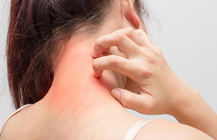 Dermatitis Neglecta