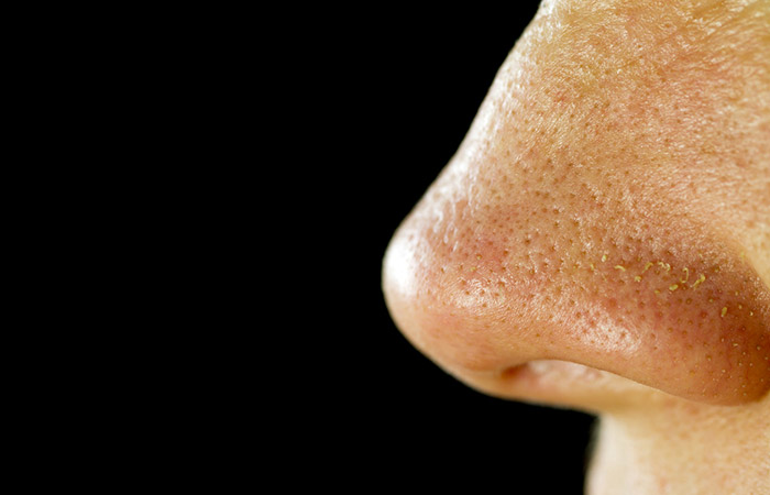 Pores - size does matter