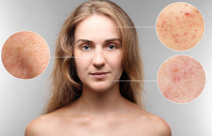 Your Skin Turns Into A Feeding Ground For All Sorts Of Harmful Germs And Bacteria