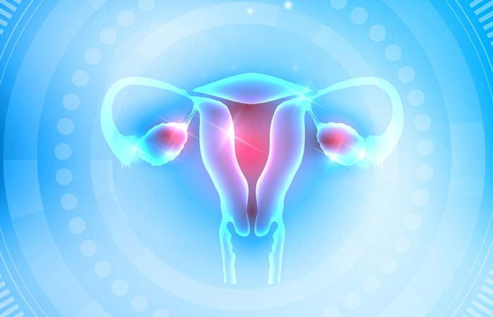 2. Suffering From PCOS