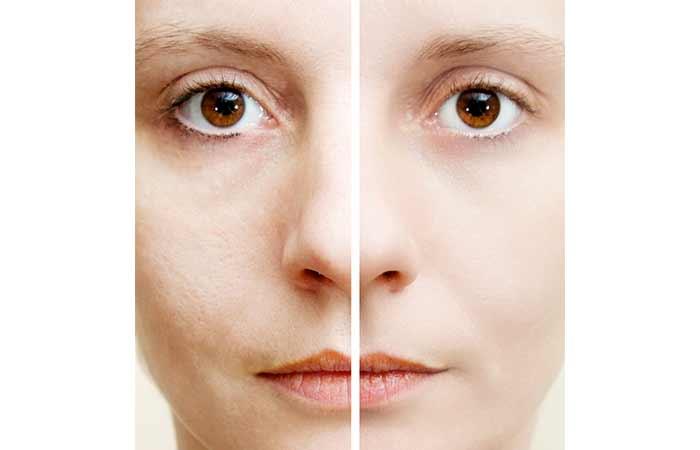 4. Your Pores Have Gotten Bigger