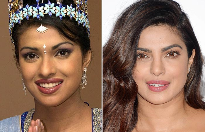 Bollywood Actress Priyanka Chopra Before And After Plastic Surgery