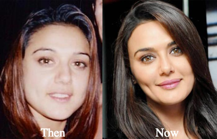 Preity Zinta Before and After Plastic Suregery