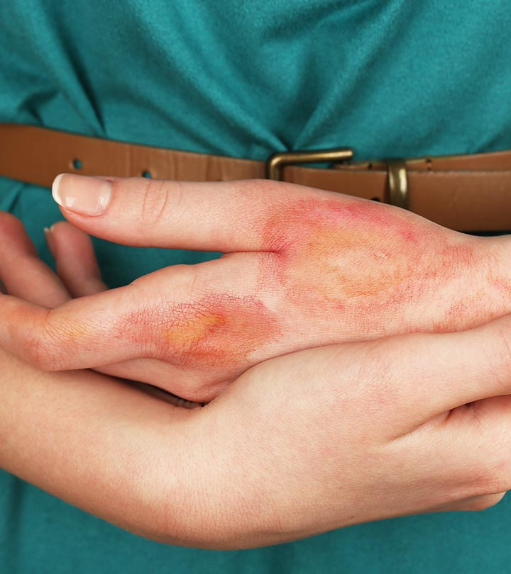 13 Remedies To Treat Burns At Home