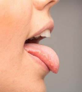 15 Home Remedies To Get Rid Of Oral Thrush