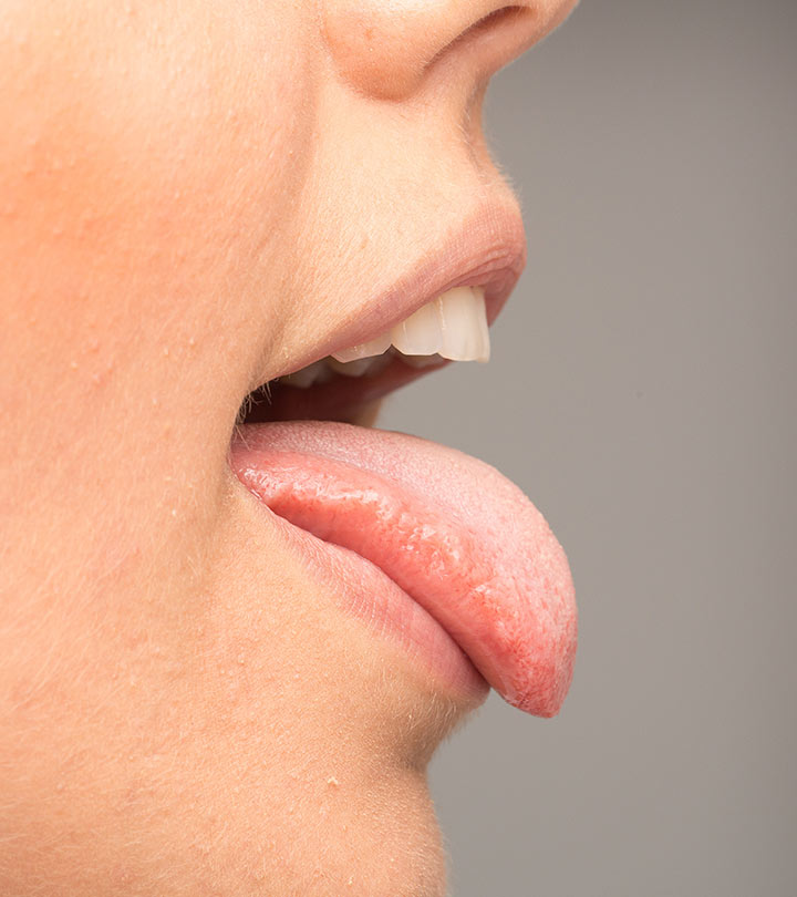 15-Home-Remedies-To-Get-Rid-Of-Oral-Thrush