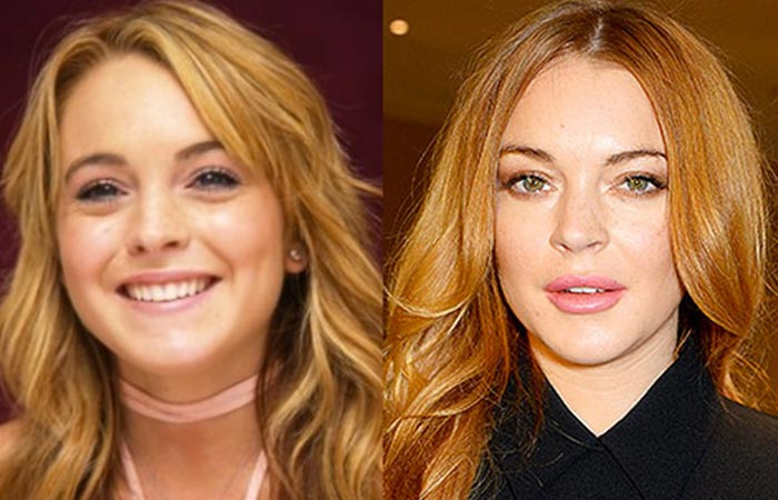 Hollywood Celebrity Lindsay Lohan Before and After Plastic Suregery