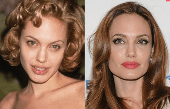Hollywood Celebrity Angelina Jolie Before and After Plastic Suregery