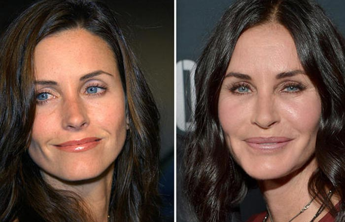 Hollywood Celebrity Courteney Cox Before and After Plastic Suregery