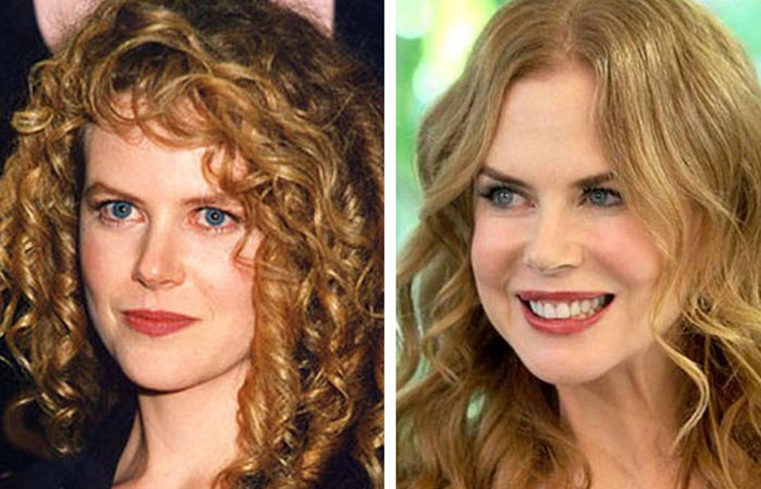 Hollywood Celebrity Nicole Kidman Before and After Plastic Suregery
