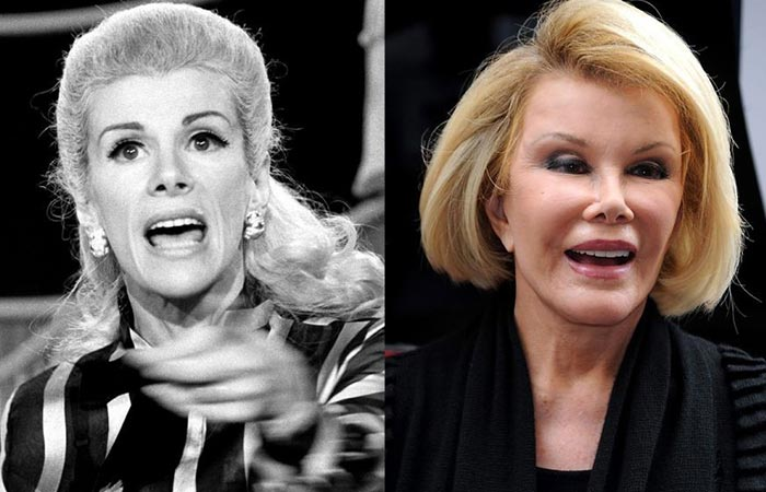 Hollywood Celebrity Joan Rivers Before and After Plastic Suregery