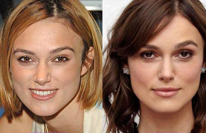 Hollywood Celebrity Keira Knightley Before and After Plastic Suregery