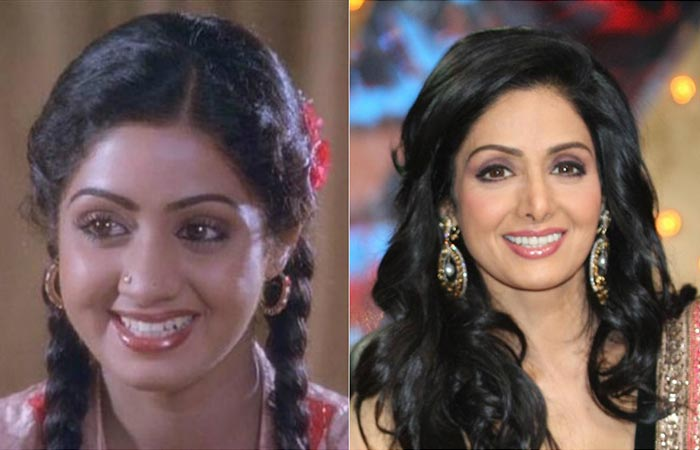 Sridevi Before And After Plastic Surgery