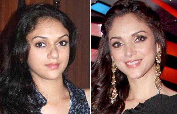 Aditi Rao Hydari Nose Job - Before and After Plastic Suregery