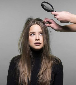 Best Anti-Dandruff Shampoos Available In India – Our Top 15