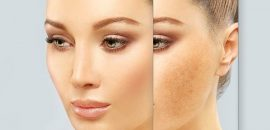 Natural Treatments For Melasma Or Dark Spots