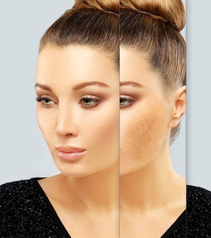 Natural Treatments For Melasma Or Dark Spots