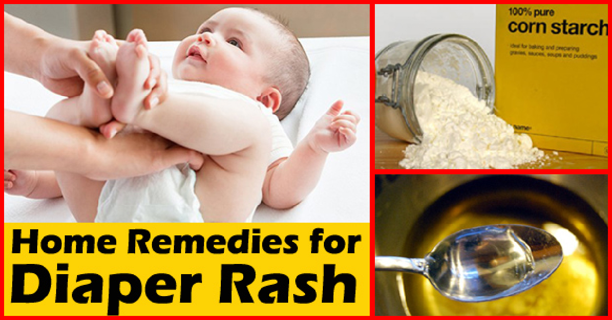 13 Effective Home Remedies To Treat Diaper Rash In Babies