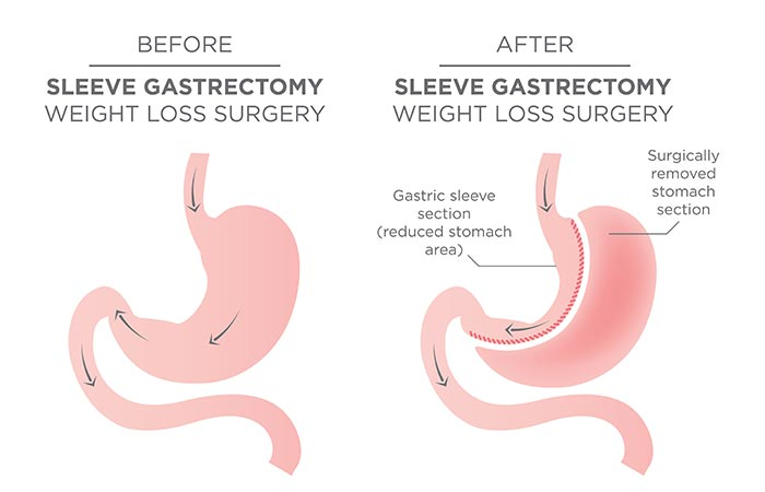 2. Gastric Sleeve Surgery