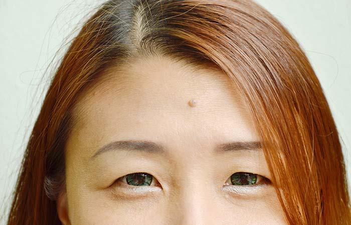 2. Mole On Your Forehead