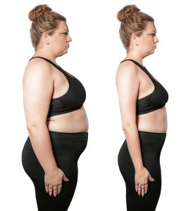 Weight Loss Surgery – Types, Safety, Benefits, And Side Effects