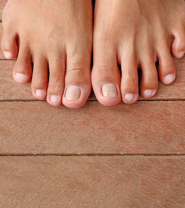 10 Home Remedies To Get Rid Of Ingrown Toenail Pain