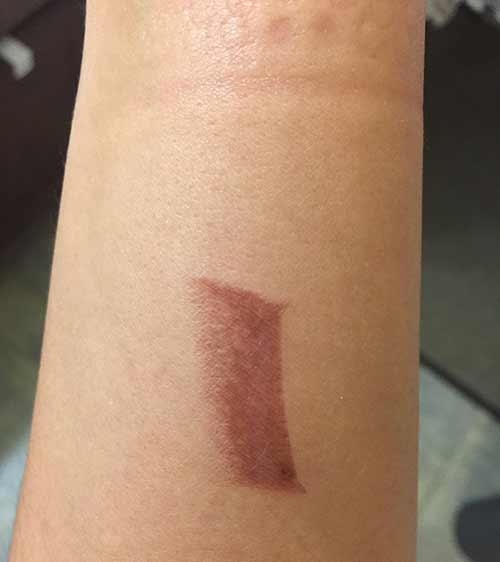 17. Straightening iron burns are a real thing.