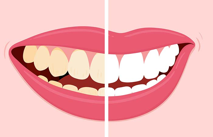 7. Stained Teeth
